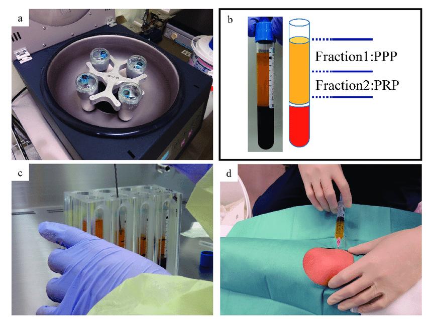 Platelet-rich-plasma-PRP-preparation-workflow-a-Centrifugation-at-2100-rpm-for-8